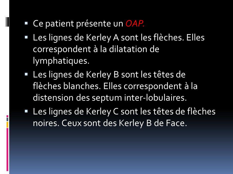 Ce patient présente un OAP.