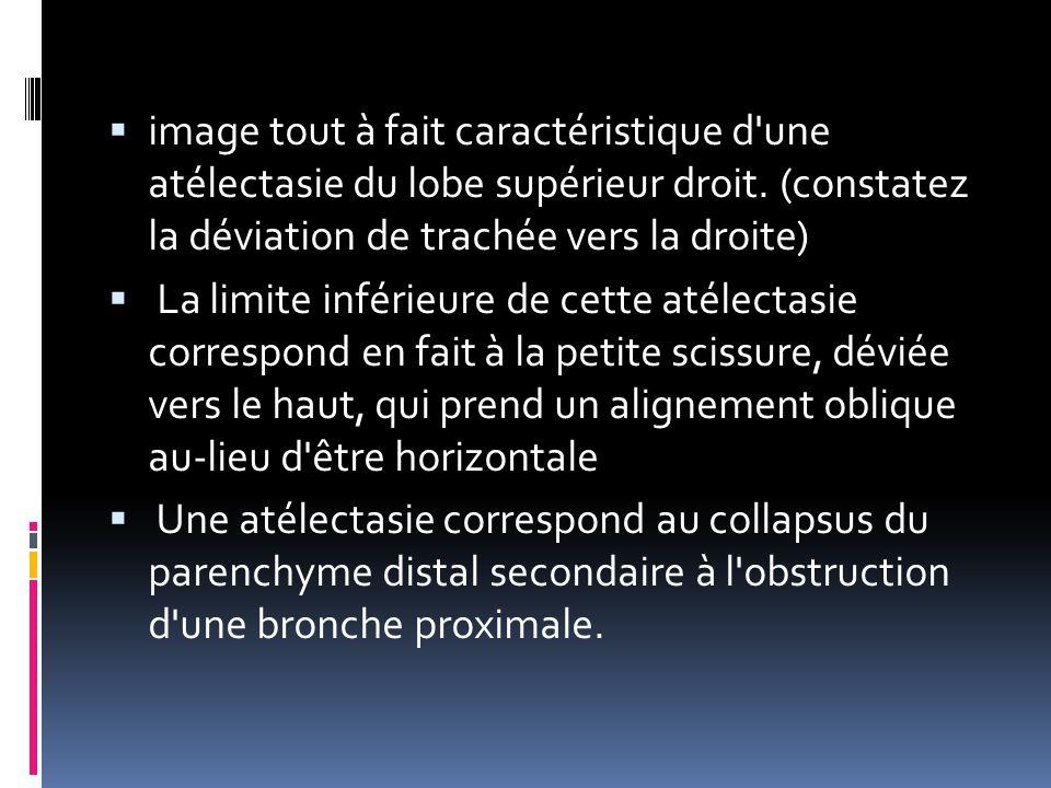 image tout à fait caractéristique d une atélectasie du lobe supérieur droit. (constatez la déviation de trachée vers la droite)