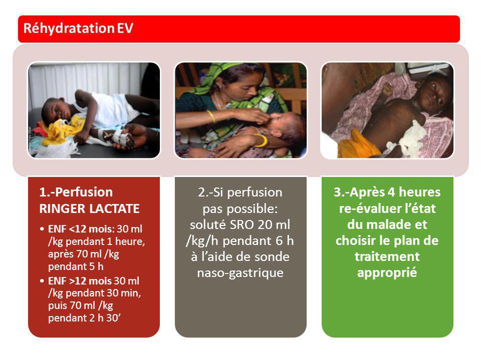Réhydratation EV 1.-Perfusion RINGER LACTATE