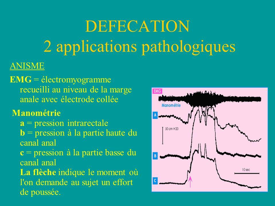 DEFECATION 2 applications pathologiques