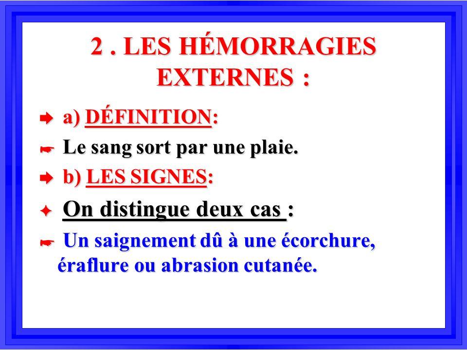2 . LES HÉMORRAGIES EXTERNES :