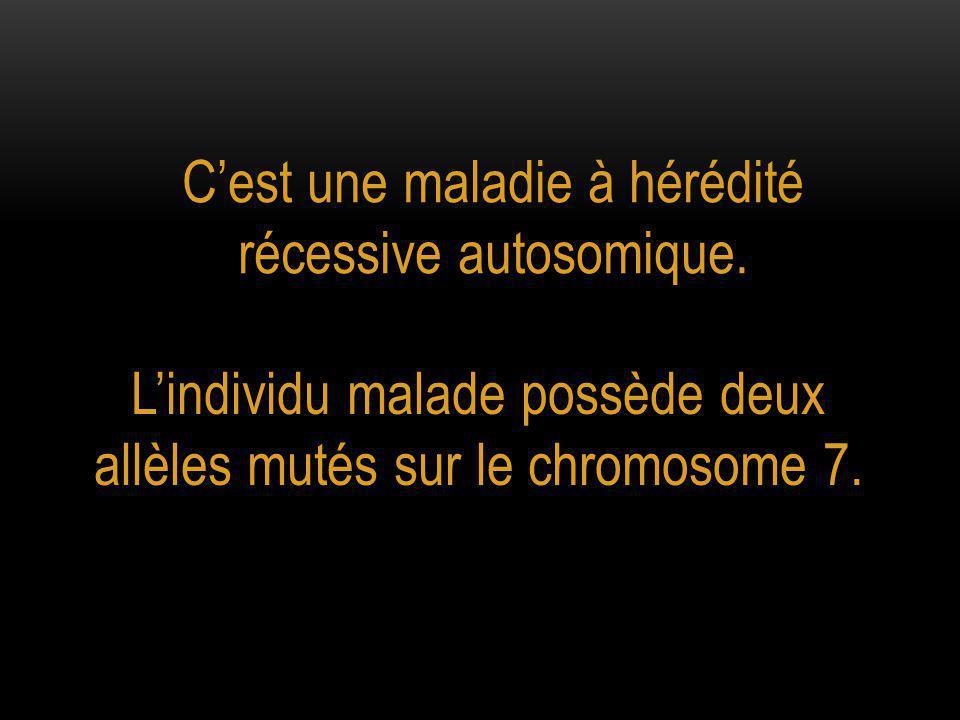 C'est une maladie à hérédité récessive autosomique.