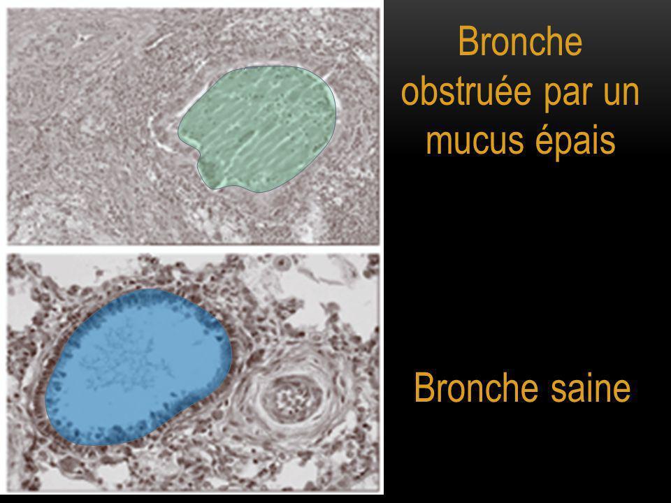 Bronche obstruée par un mucus épais