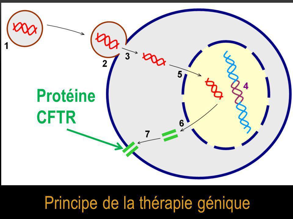 Principe de la thérapie génique