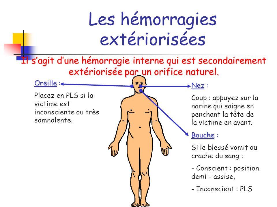 Les hémorragies extériorisées
