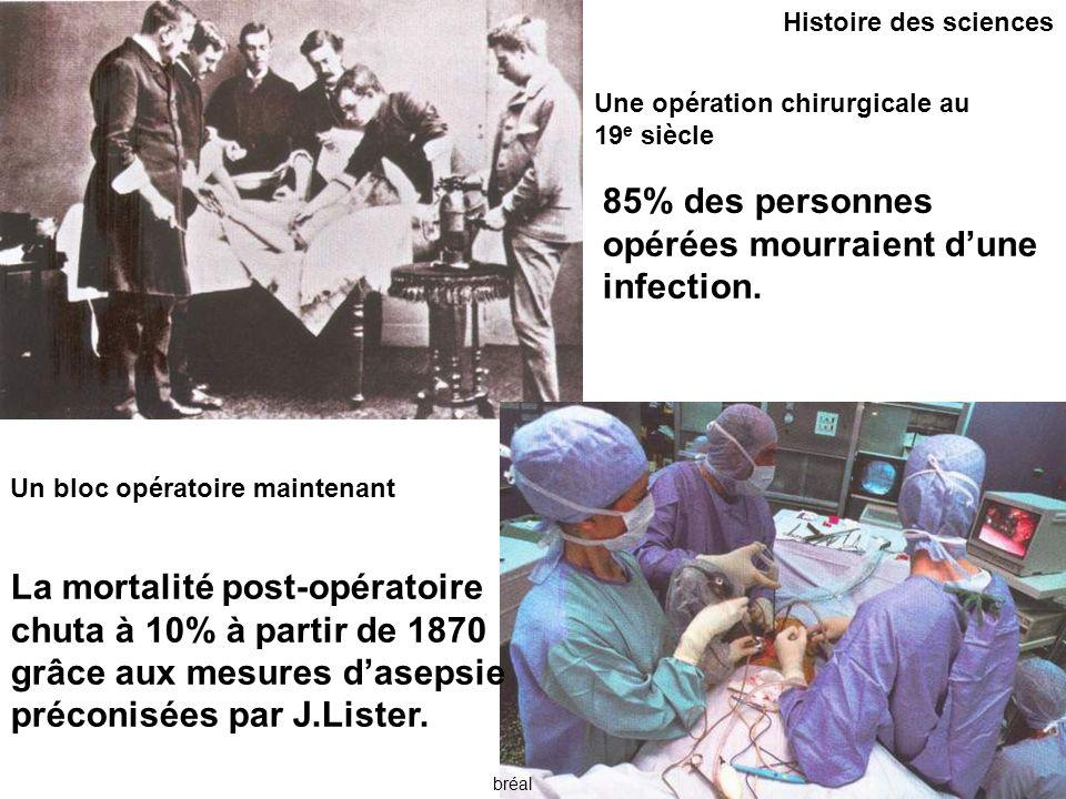 85% des personnes opérées mourraient d'une infection.
