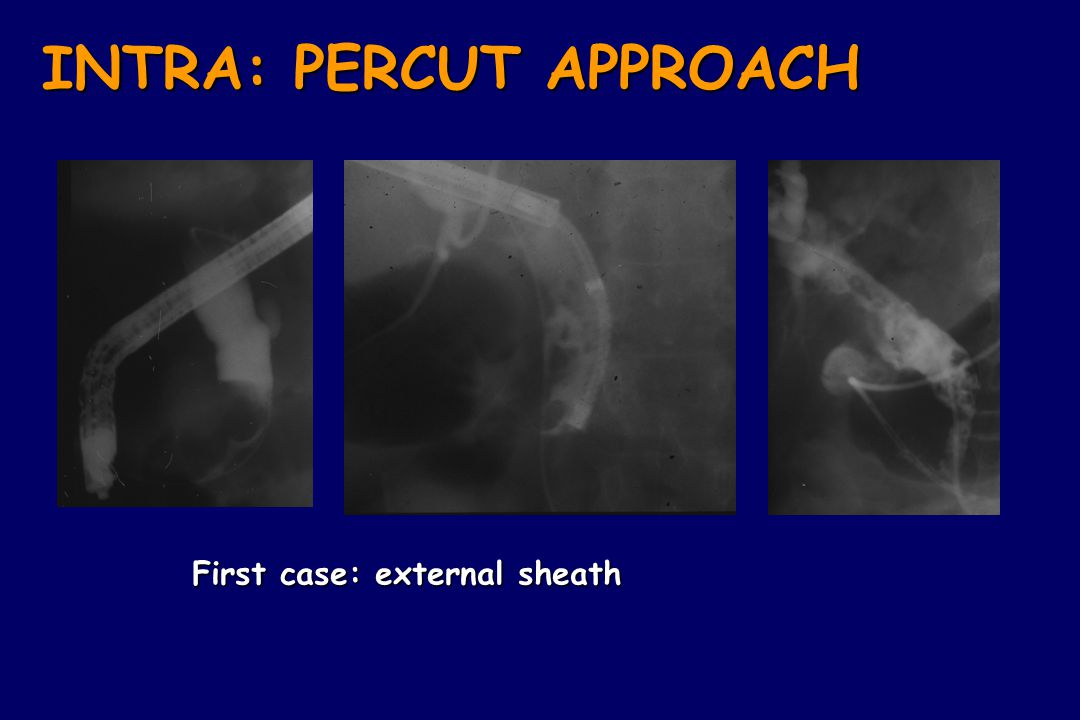 INTRA: PERCUT APPROACH
