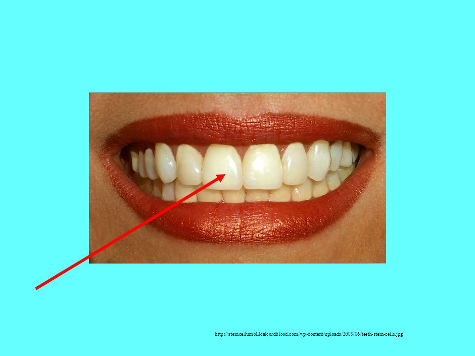 http://stemcellumbilicalcordblood.com/wp-content/uploads/2009/06/teeth-stem-cells.jpg