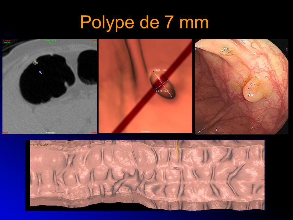 Polype de 7 mm
