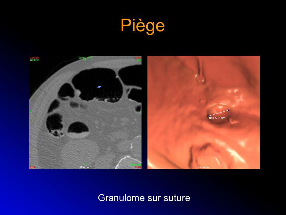 Piège Granulome sur suture