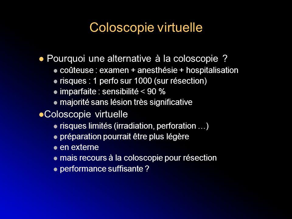 Coloscopie virtuelle Pourquoi une alternative à la coloscopie