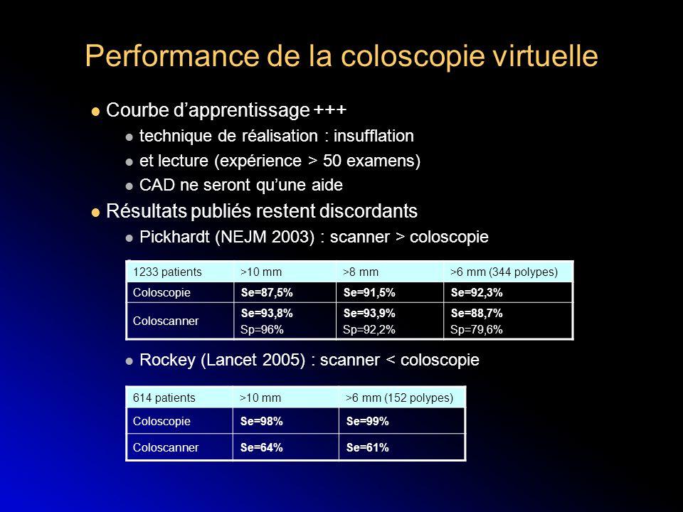 Performance de la coloscopie virtuelle