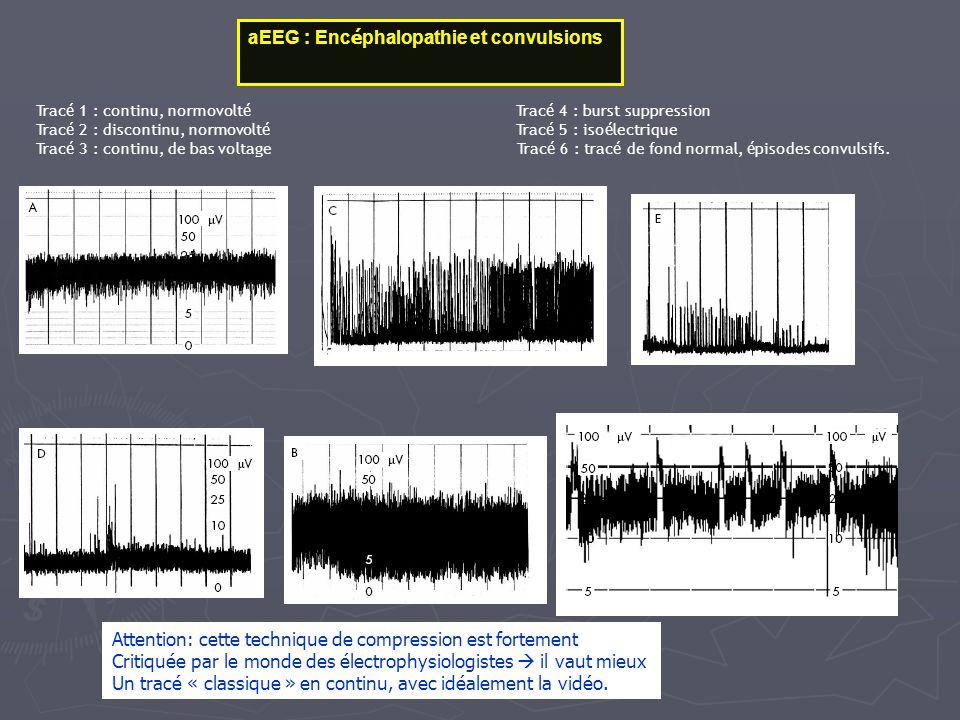 aEEG : Encéphalopathie et convulsions