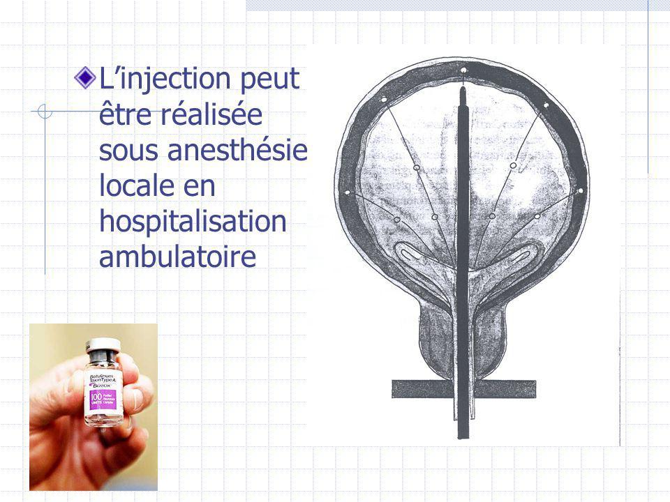 L'injection peut être réalisée sous anesthésie locale en hospitalisation ambulatoire