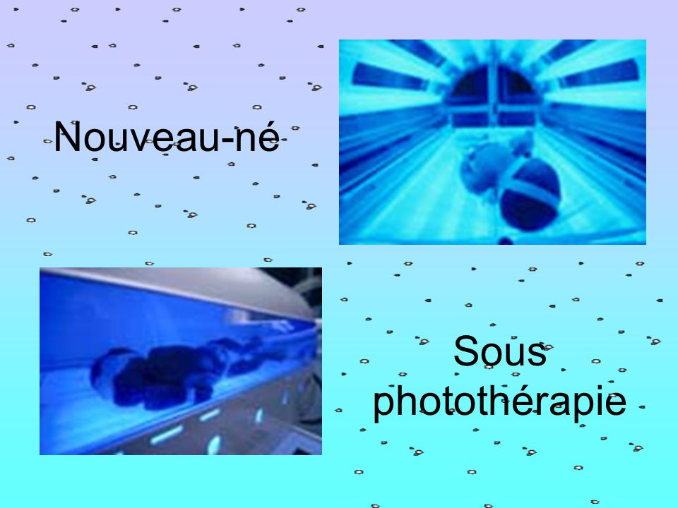 Nouveau-né Sous photothérapie