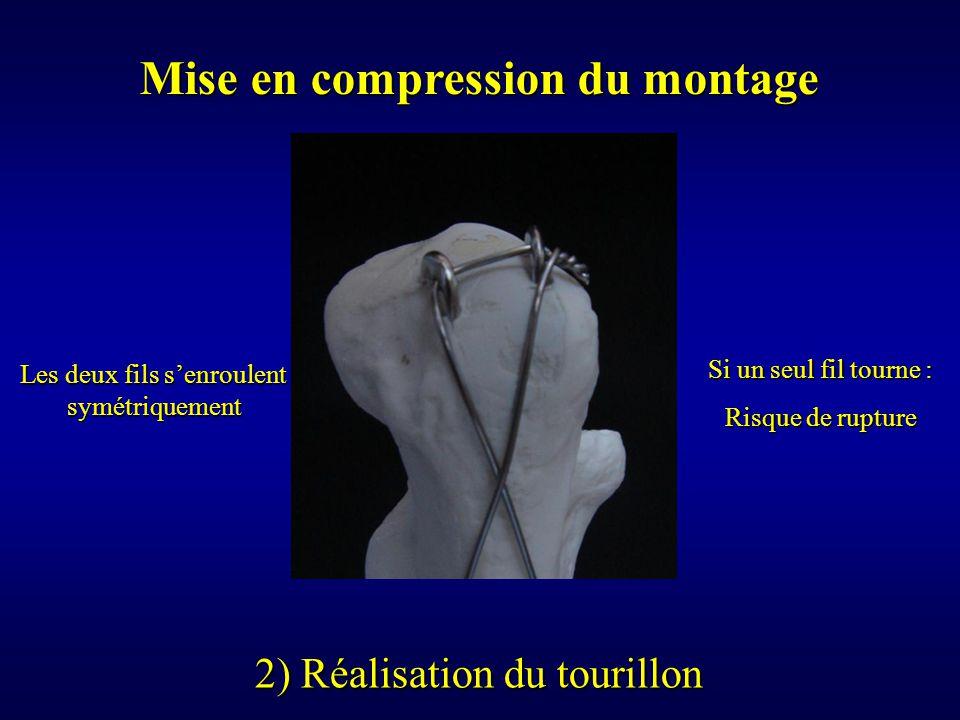 Mise en compression du montage
