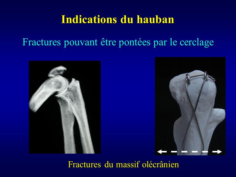 Indications du hauban Fractures pouvant être pontées par le cerclage