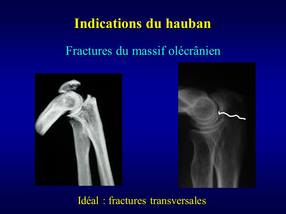 Indications du hauban Fractures du massif olécrânien