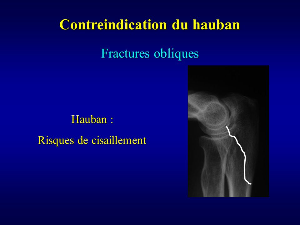 Contreindication du hauban
