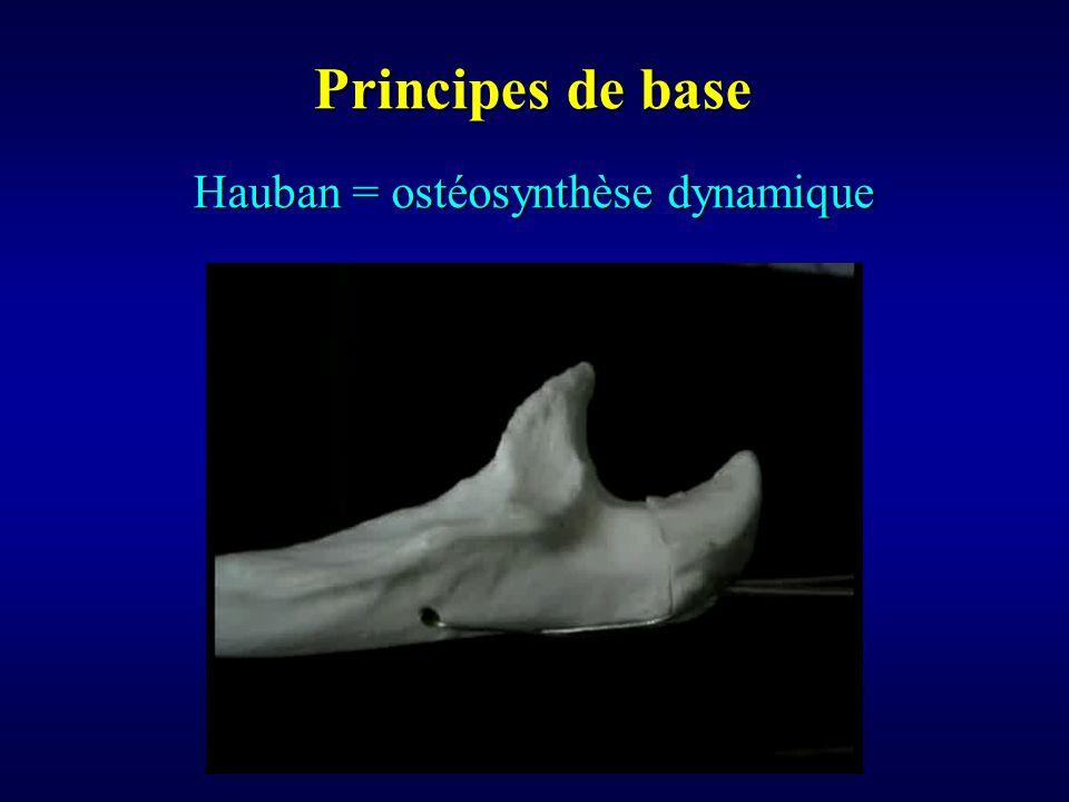 Hauban = ostéosynthèse dynamique