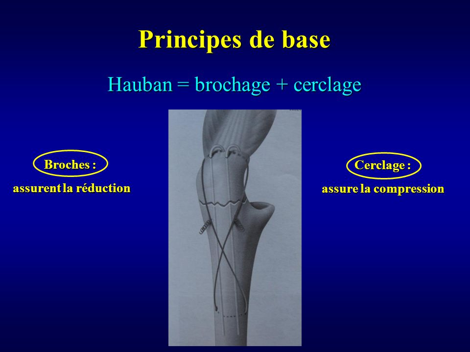 Hauban = brochage + cerclage