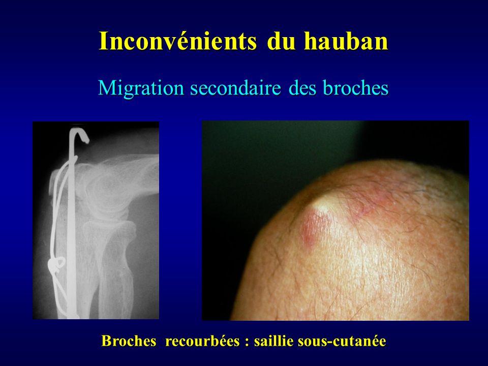 Inconvénients du hauban Broches recourbées : saillie sous-cutanée