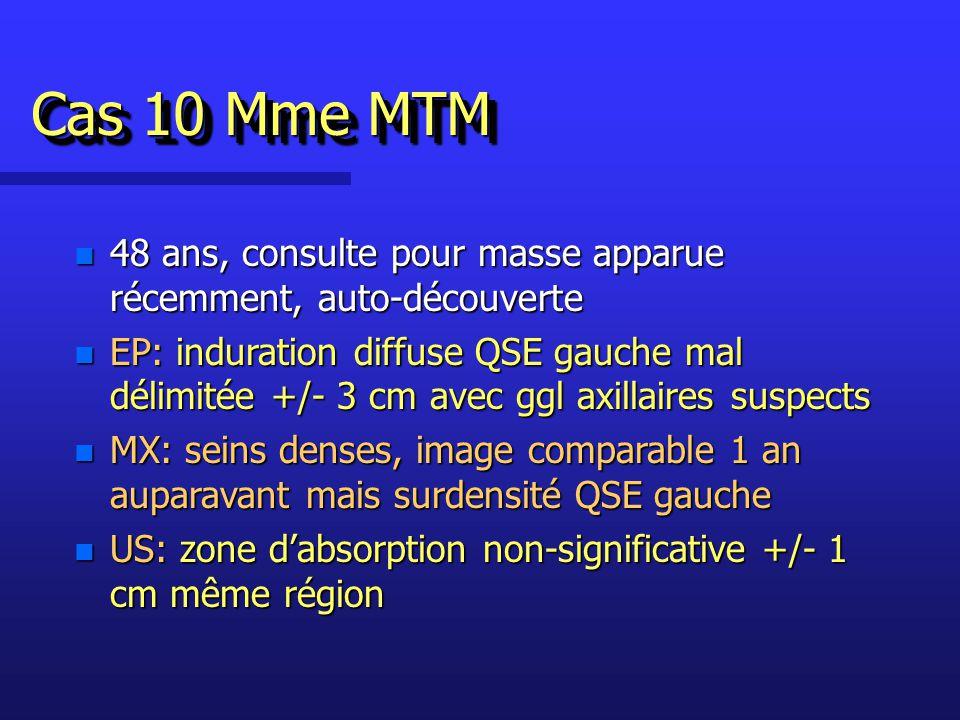 Cas 10 Mme MTM 48 ans, consulte pour masse apparue récemment, auto-découverte.