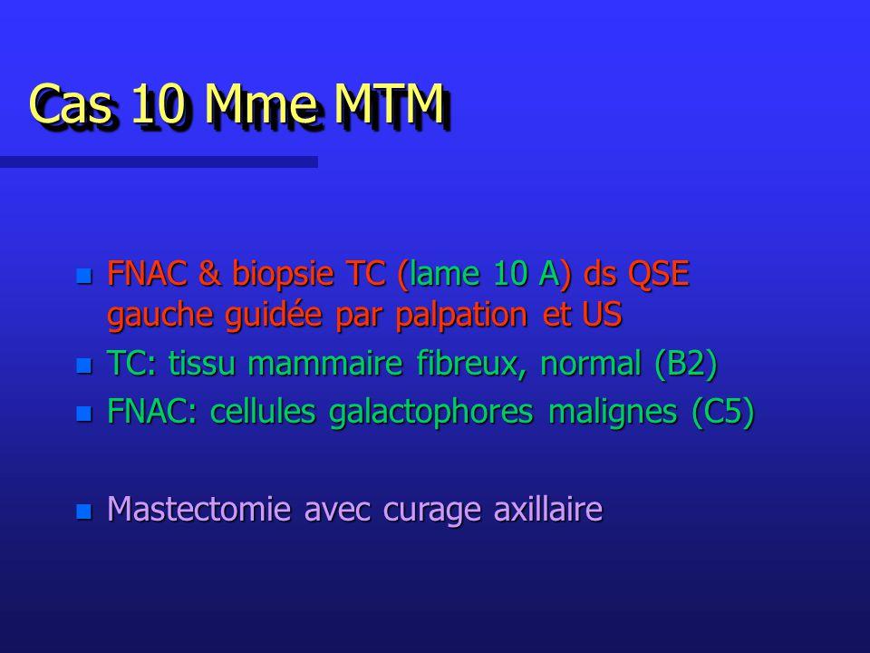 Cas 10 Mme MTM FNAC & biopsie TC (lame 10 A) ds QSE gauche guidée par palpation et US. TC: tissu mammaire fibreux, normal (B2)
