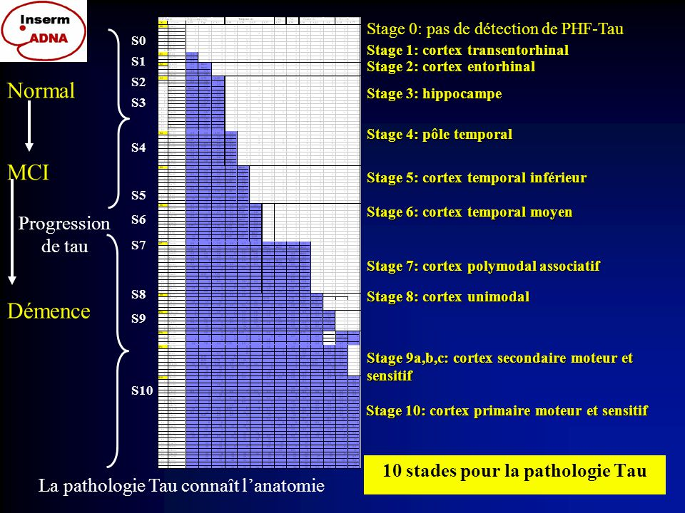 10 stades pour la pathologie Tau