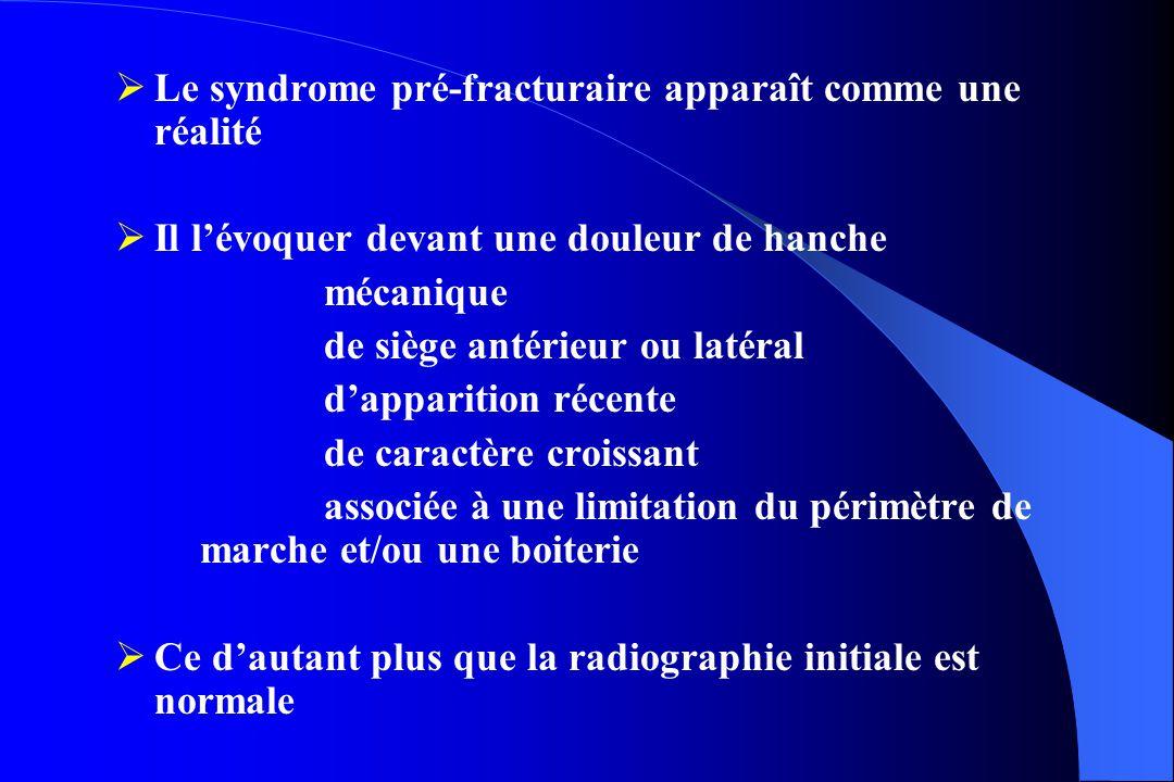 Le syndrome pré-fracturaire apparaît comme une réalité