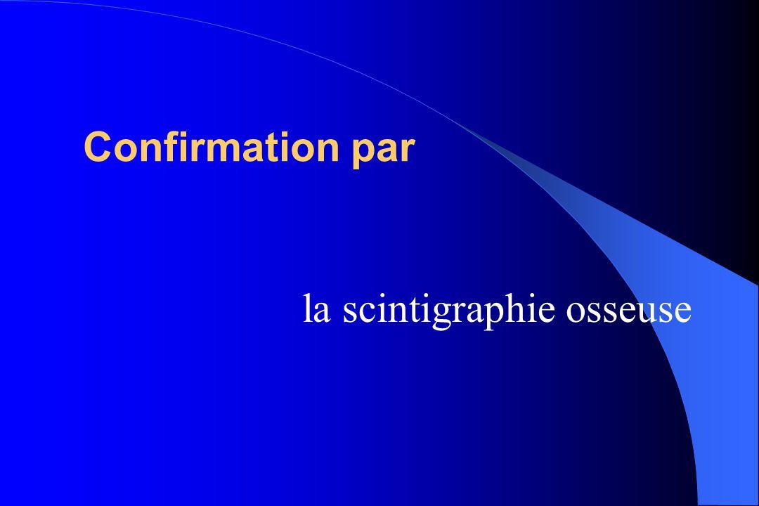 Confirmation par la scintigraphie osseuse