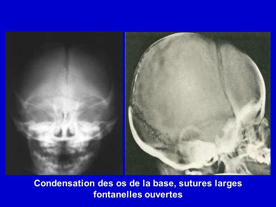 Condensation des os de la base, sutures larges fontanelles ouvertes