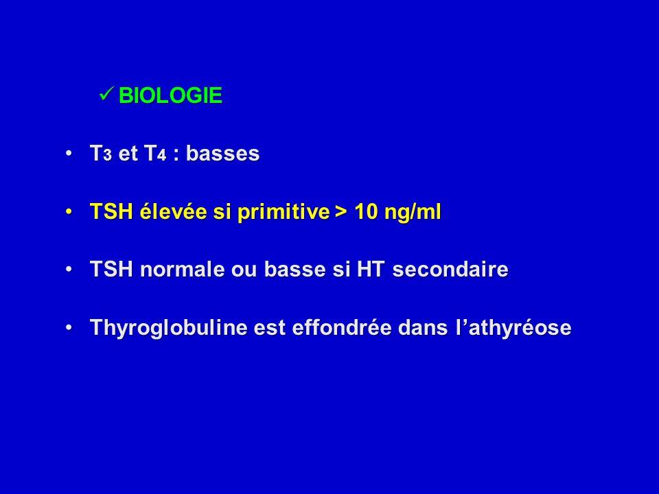 BIOLOGIE T3 et T4 : basses. TSH élevée si primitive > 10 ng/ml. TSH normale ou basse si HT secondaire.