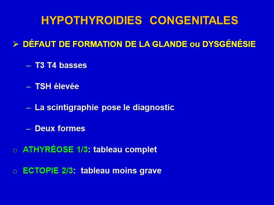 HYPOTHYROIDIES CONGENITALES