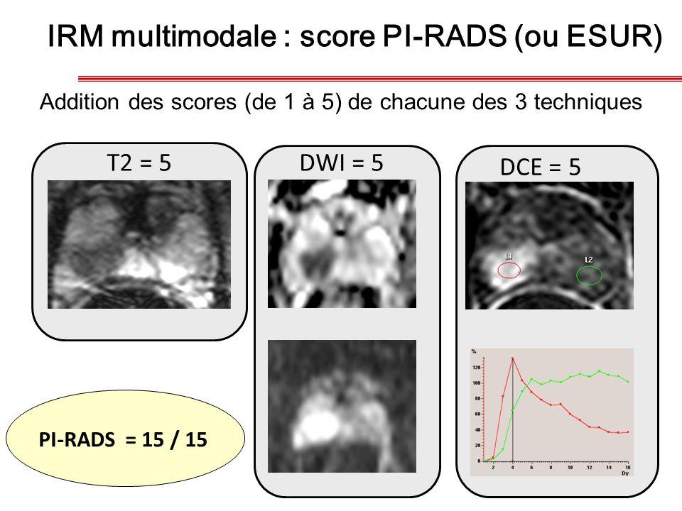 IRM multimodale : score PI-RADS (ou ESUR)
