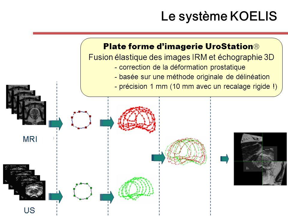 Le système KOELIS Plate forme d'imagerie UroStation