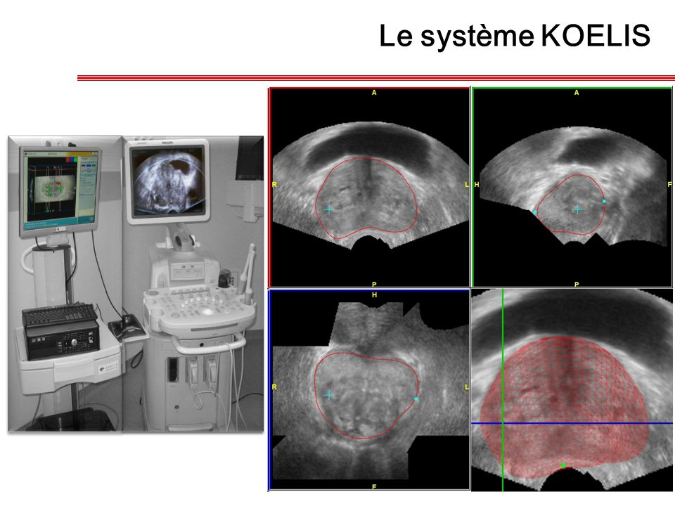 Le système KOELIS