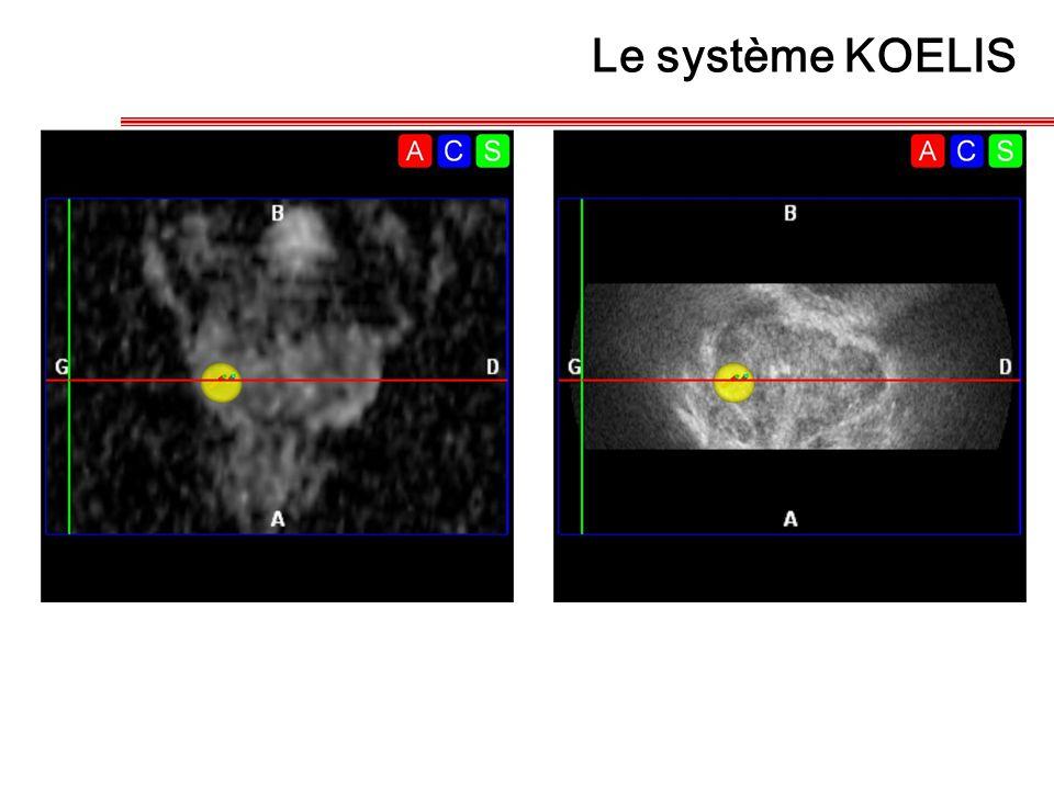 Le système KOELIS 16