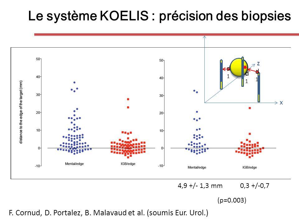 Le système KOELIS : précision des biopsies
