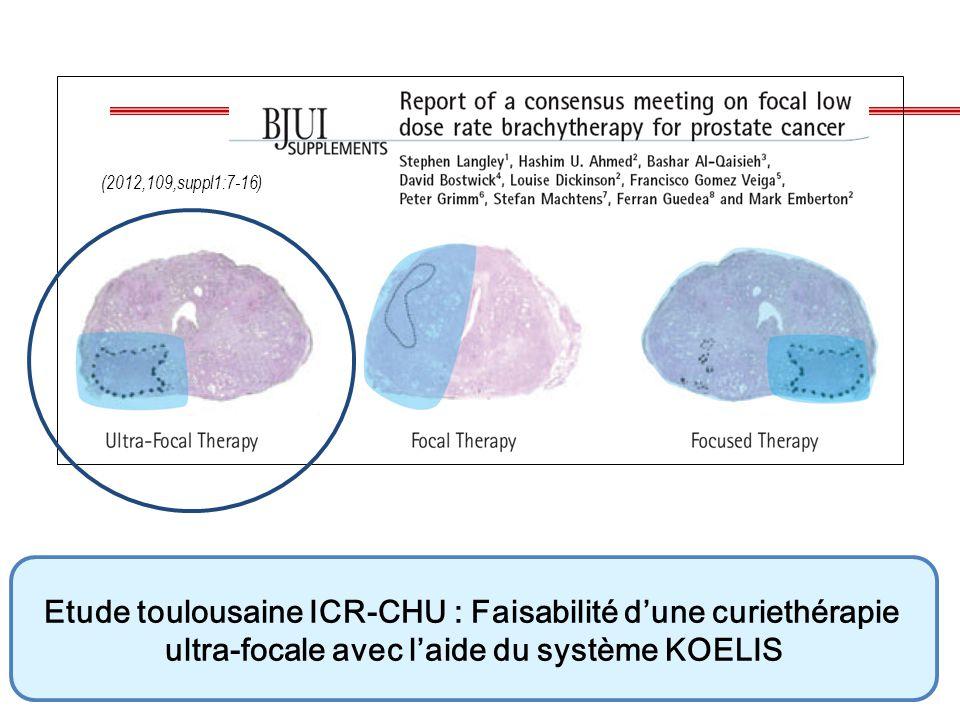 (2012,109,suppl1:7-16) Etude toulousaine ICR-CHU : Faisabilité d'une curiethérapie ultra-focale avec l'aide du système KOELIS.