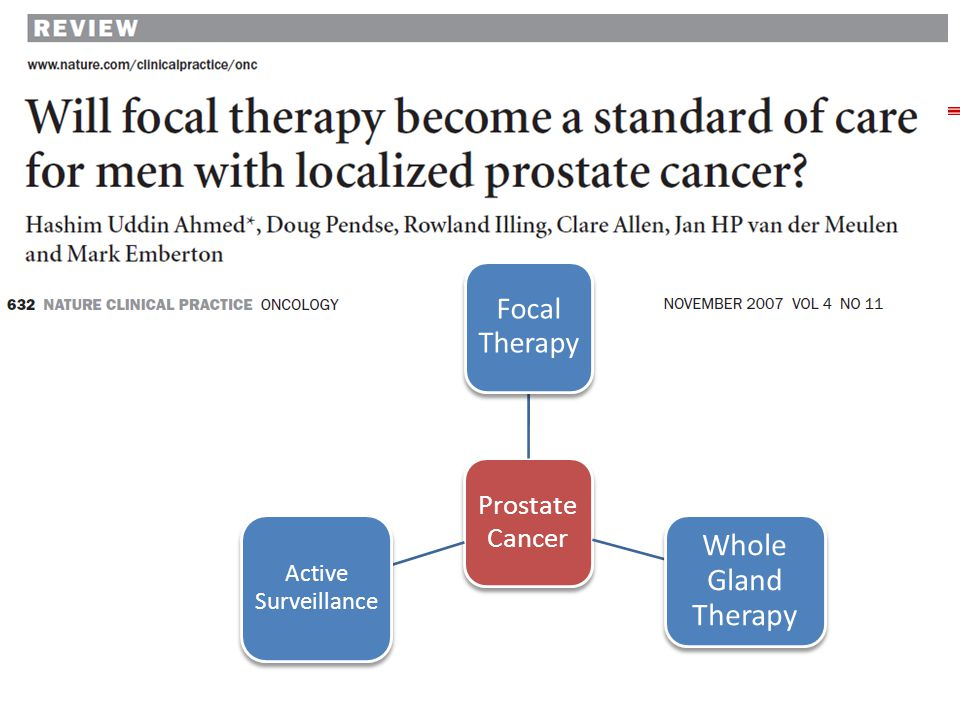 Whole Gland Therapy Focal Therapy Prostate Cancer Active Surveillance