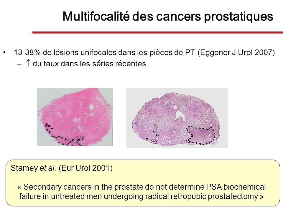 Multifocalité des cancers prostatiques