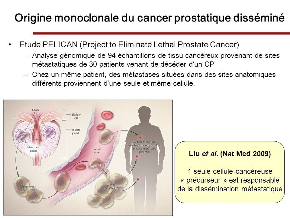 Origine monoclonale du cancer prostatique disséminé