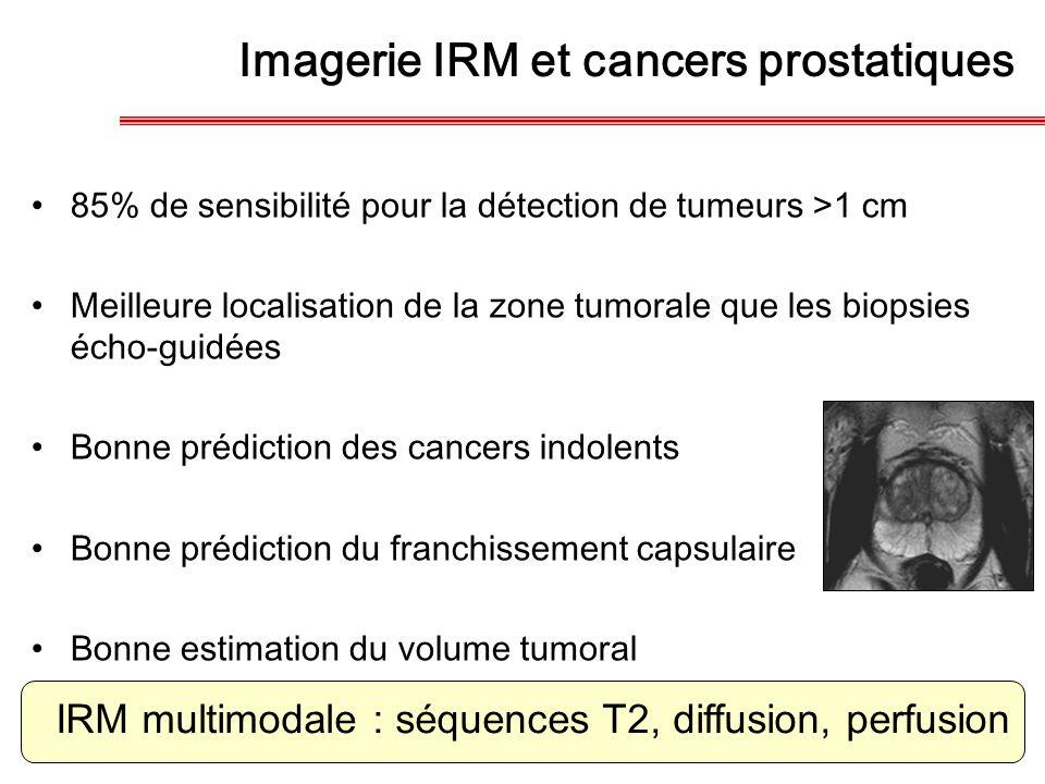 Imagerie IRM et cancers prostatiques