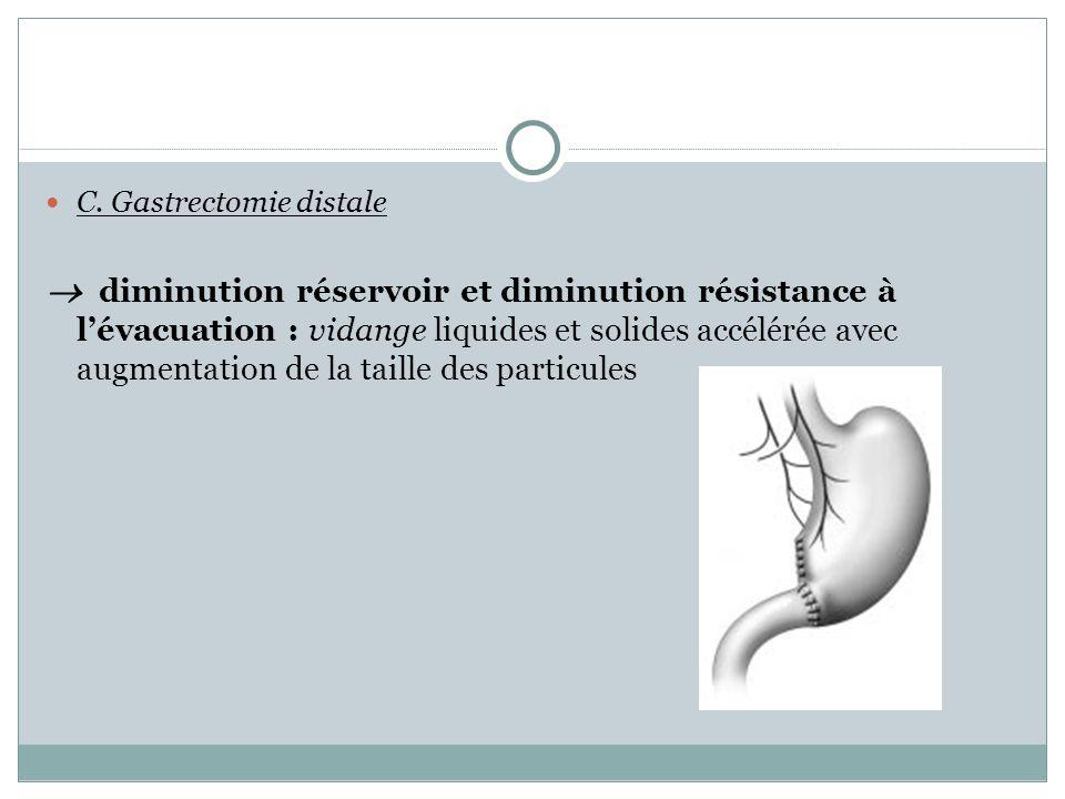 C. Gastrectomie distale