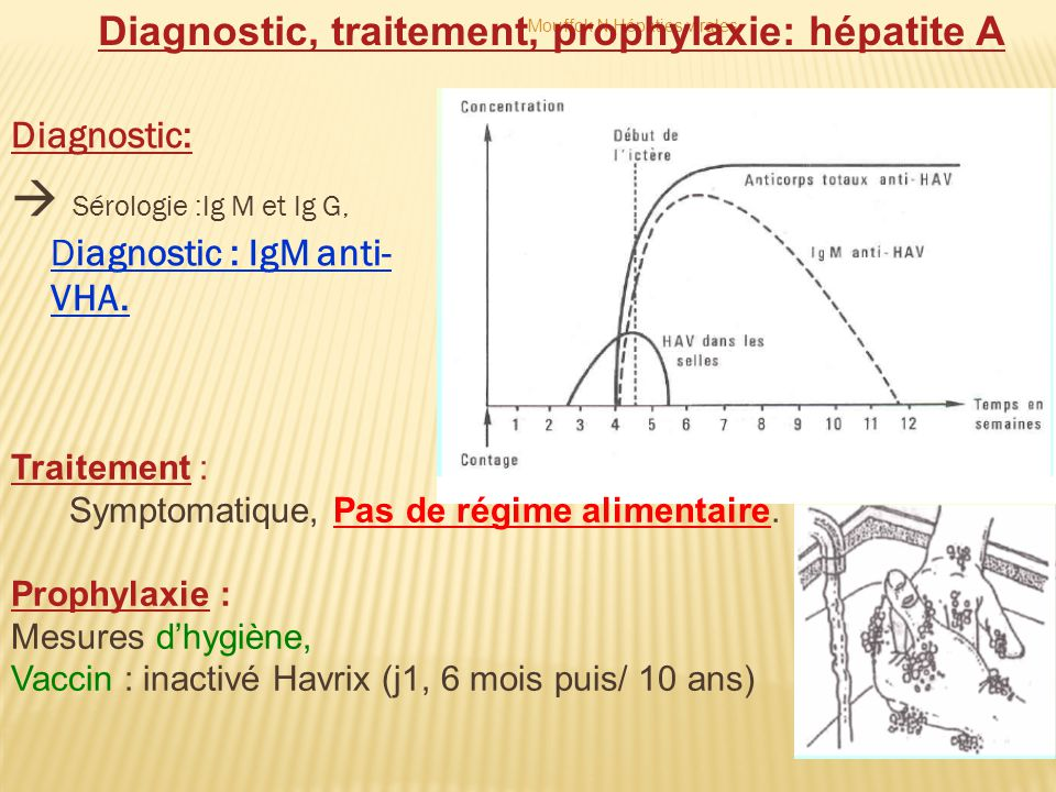  Sérologie :Ig M et Ig G, Diagnostic : IgM anti-VHA.
