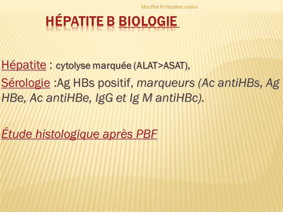 Hépatite B Biologie Hépatite : cytolyse marquée (ALAT>ASAT),