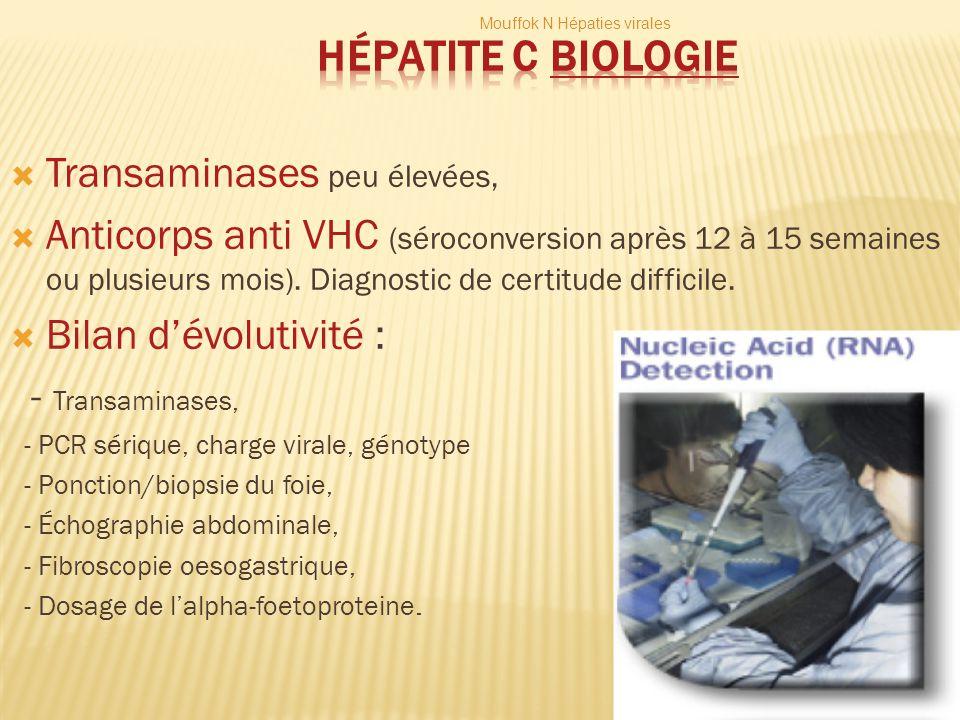 Hépatite C Biologie Transaminases peu élevées,