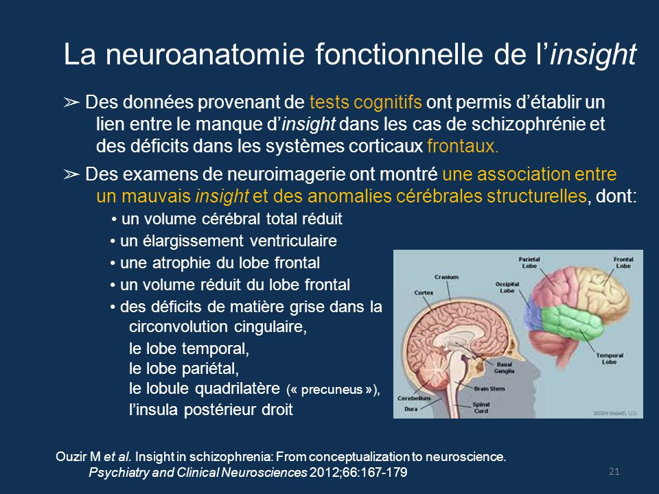 La neuroanatomie fonctionnelle de l'insight