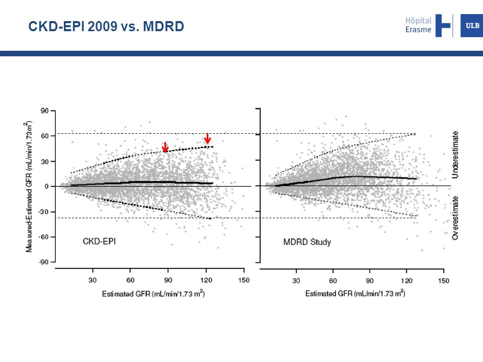 CKD-EPI 2009 vs. MDRD Precision = interquatiles ranges